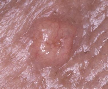 Sebaceous Gland Hyperplasia Appalachian Spring Dermatology