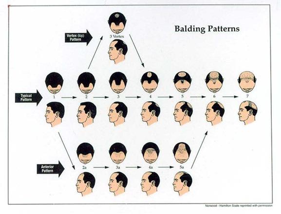 androgenetic alopecia appalachian spring dermatology
